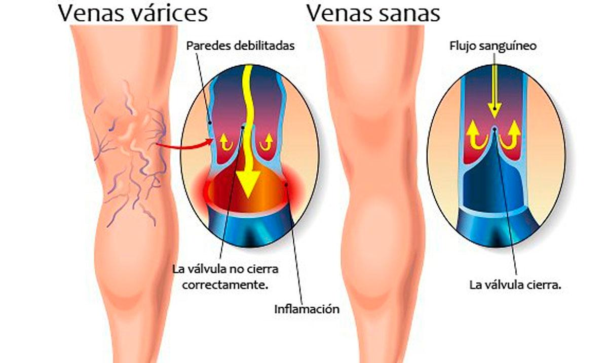 Las extremidades inferiores flebolog